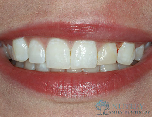 lower porcelain veneers